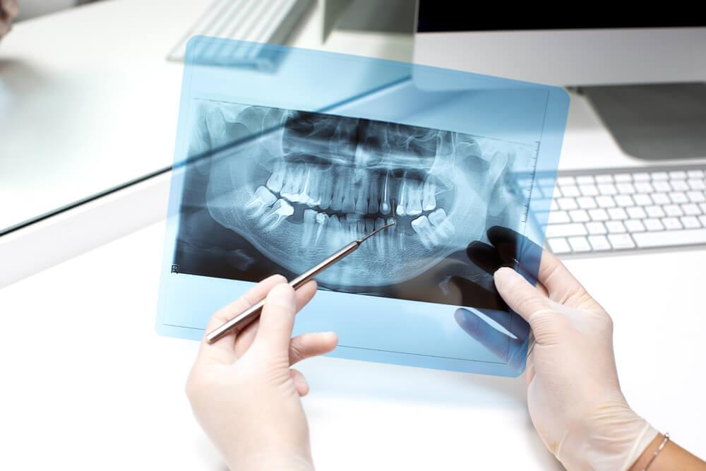 Informe pericial odontológico