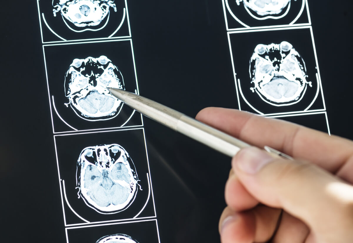 Informe de valoración de daño neurológico